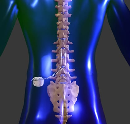 Spinal Cord Stimulation - Treatment for Chronic Pain Sufferers